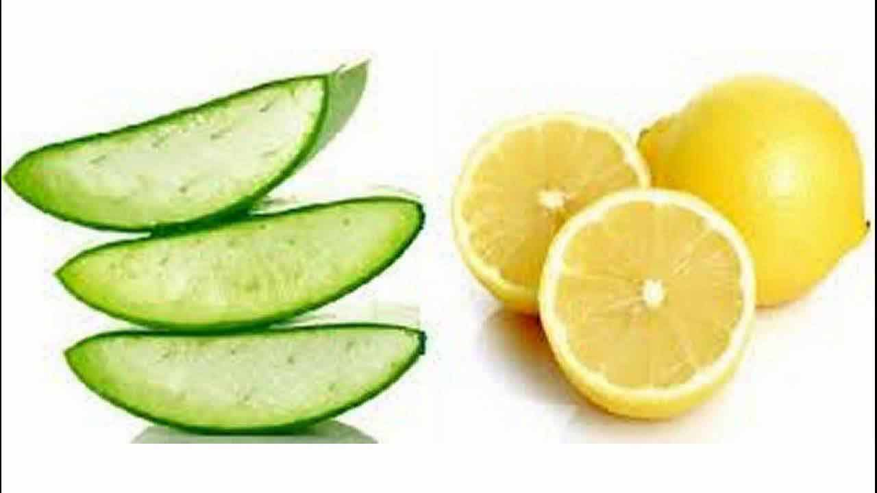 Pakistani home remedies for acne with Aloe vera gel and lemon